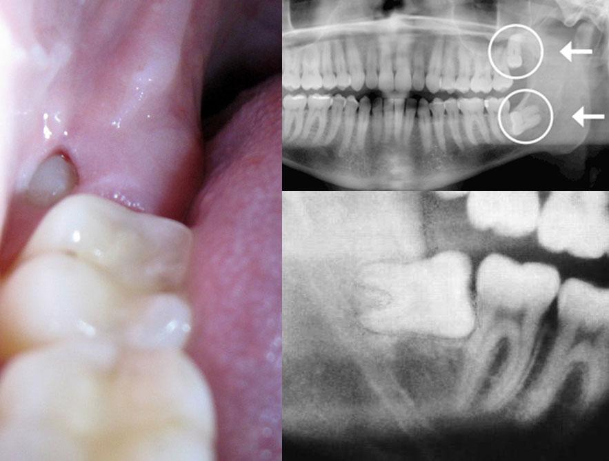 bölcsesség fogak és ízületi fájdalmak az ujjak ízületeinek ízületi gyulladásának kezelése